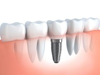 Dental Implants Glendale WI