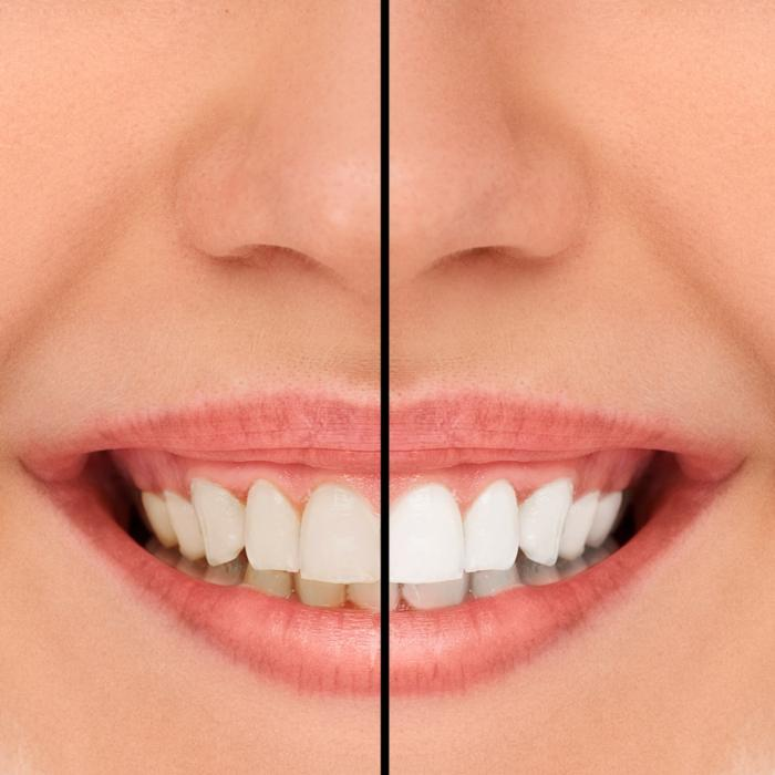 Smile | Teeth Whitening Glendale WI